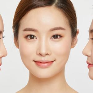 隆鼻の効果